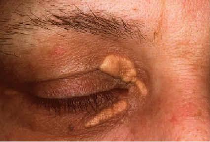 tratament xantelsama dermatologie