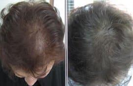 Alopeciile