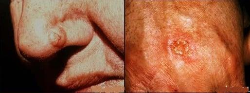 Cancerul de piele
