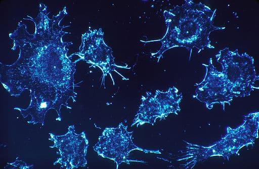 Cancerul diagnostic