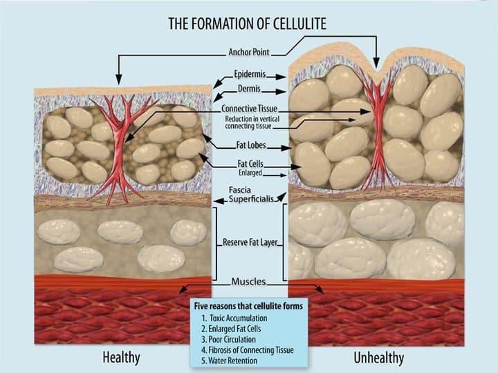 Tratamentul celulitei