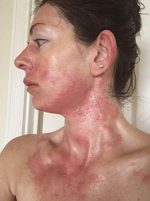 Diagnosticul si terapia antialergica.Alergia
