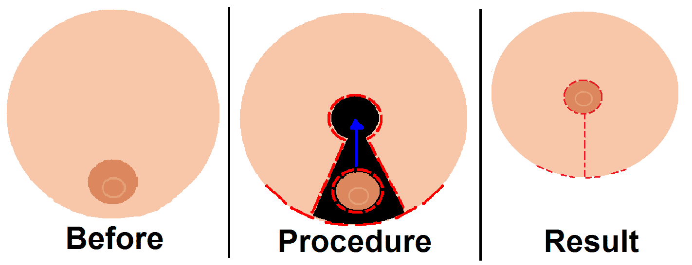 Micsorarea sanilor (Mamoplastia)