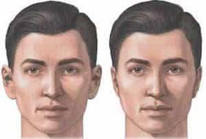 Otoplastia - corectia urechilor