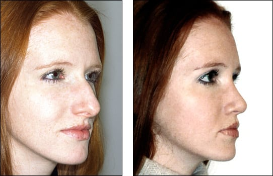 Rinoplastia - corectia nasului
