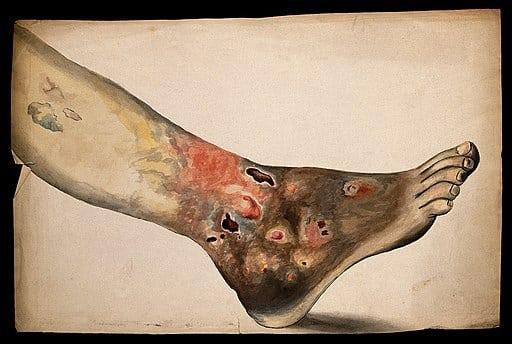 Ulcerul cronic de gamba