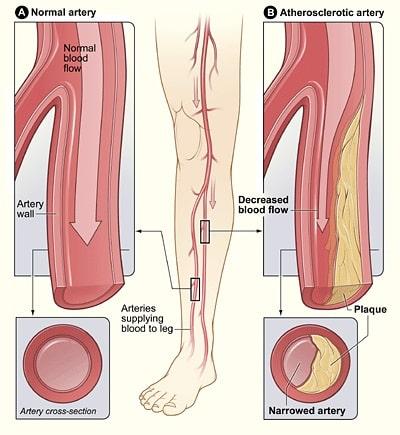 Boala arterială periferică