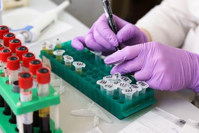 Diagnosticul diferential al analizelor de laborator