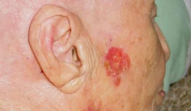 Factorii de risc pentru cancerul de piele carcinom-bazocelular