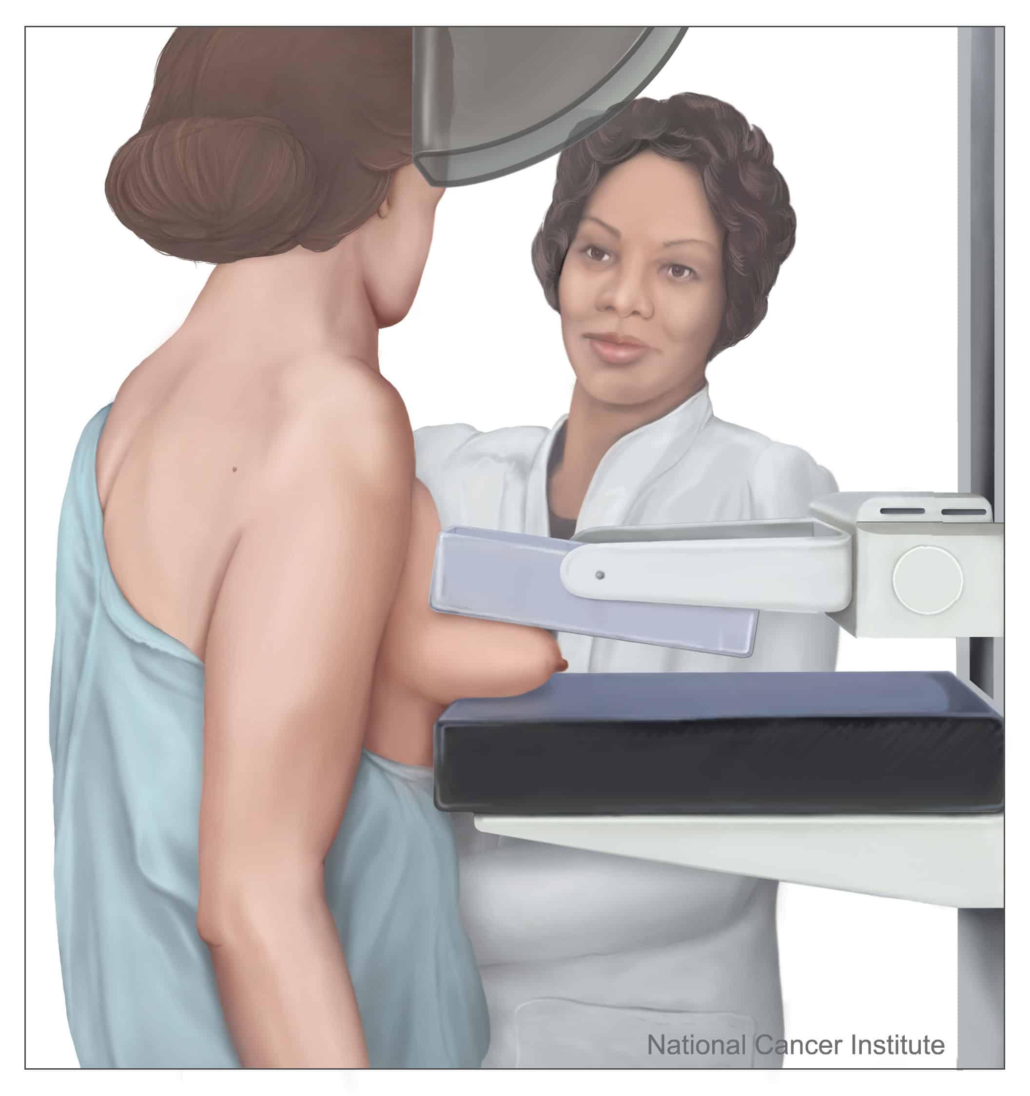 Tratamentul cancerului mamar neinvaziv (IN SITU)