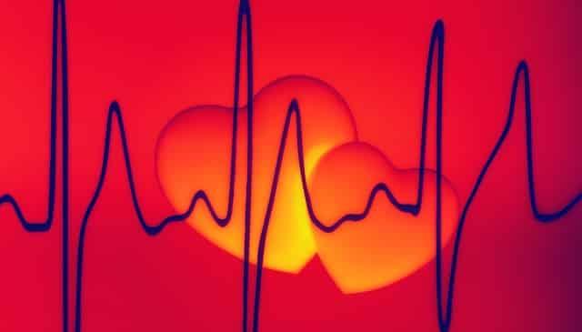 Morfopatologia Infarctului Miocardic