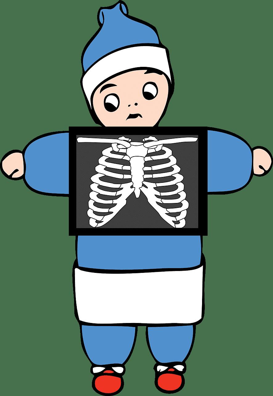 Infarctul Pulmonar