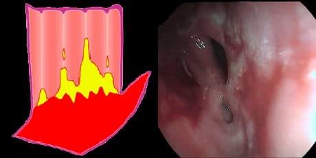 Boala de reflux gastroesofagian.Esofagita