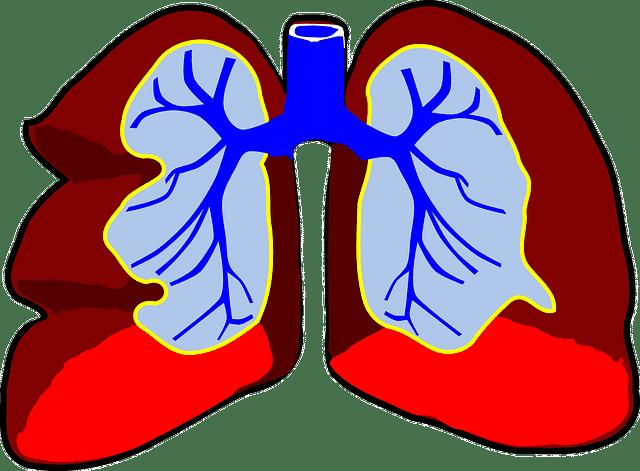 Pneumoniile acute
