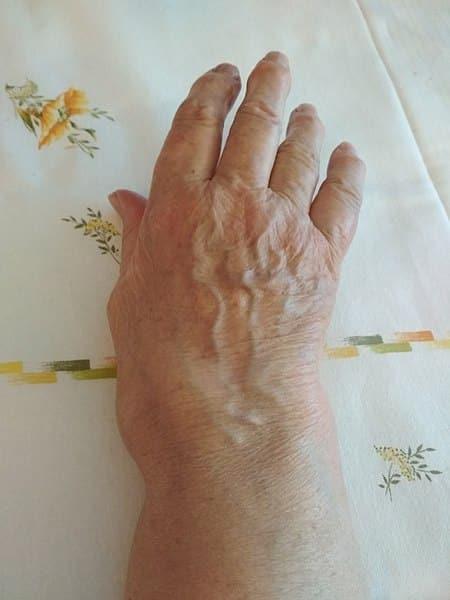 Artrita reumatoida. Tratament