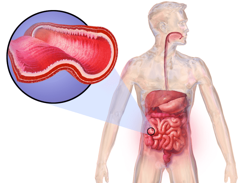Boala Crohn. Diagnostic