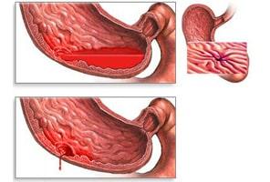 hemoragia gastrointestinala