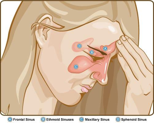 Sinuzita bacteriana acuta