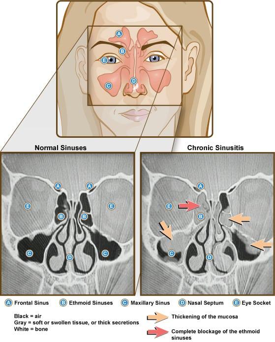Sinuzita bacteriana cronica