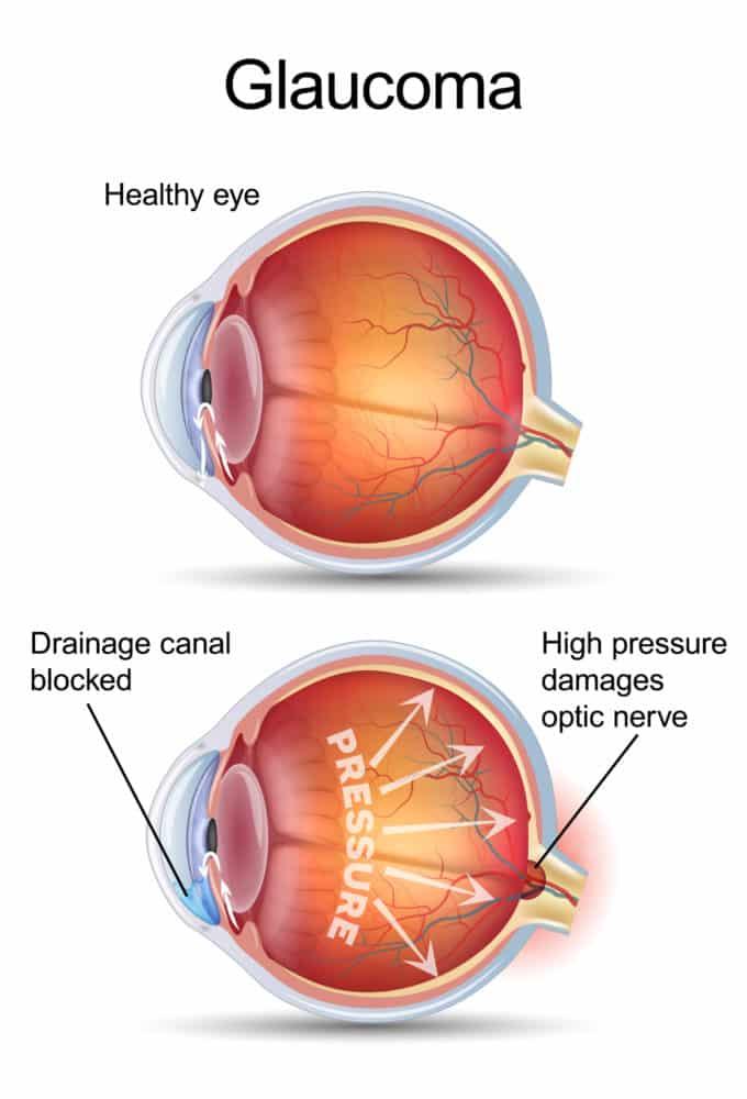 Glaucomul cu unghi deschis